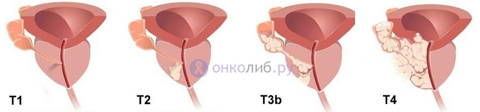 Степени распространённости первичной опухоли в соответствии с международной классификацией TNM