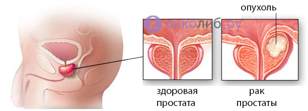 Рак простаты/предстательной железы: симптомы, лечение