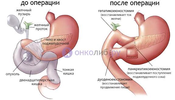 Рак поджелудочной железы: симптомы, лечение, прогноз