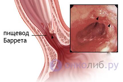 Рак пищевода: симптомы, лечение, степени, прогноз