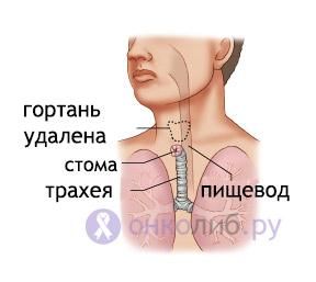 Рак горла (гортани): симптомы и признаки, лечение, стадии