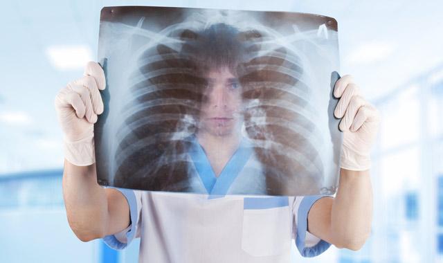 Метастазы (метастазирование): в печени, легких, костях - прогноз, лечение, симптомы