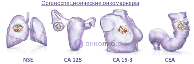 Карцинома (рак): плоскоклеточная, папиллярная