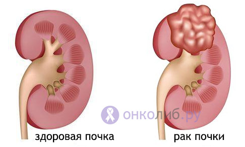 Рак почки: симптомы, признаки, лечение, стадии, прогноз