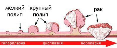 Стадии рака, степени: 1,2,3,4, ранняя, начальная, прогноз