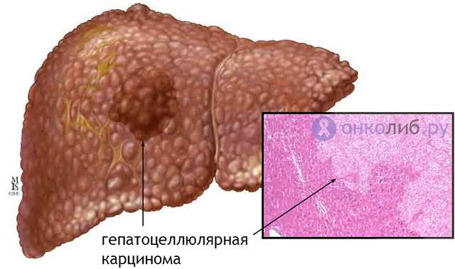 Рак печени: симптомы, признаки, лечение, прогноз