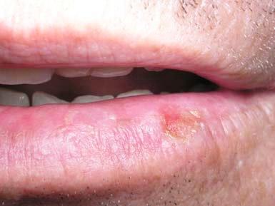 Рак губи: симптоми, лечение, признаки начальной стадии