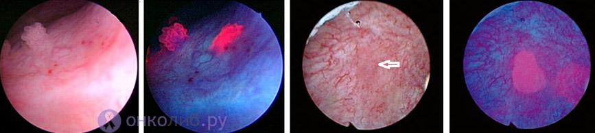папиллярная (слева) и плоскоклеточная карцинома (справа) на снимках PDD