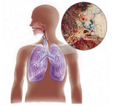 Рак легких: симптомы, признаки, лечение, стадии