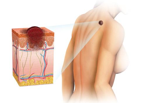 Меланома: симптомы, начальная стадия, лечение, прогноз