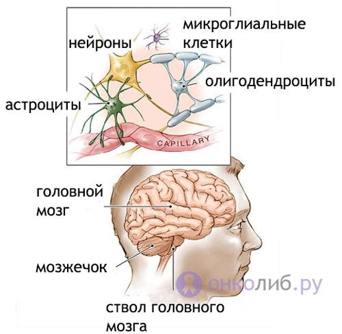 Глиома (глиобластома, астроцитома): лечение, прогноз