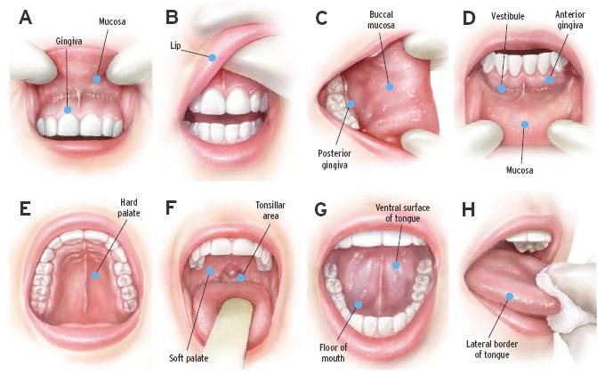 Рак полости рта: слизистой, десен, неба, щеки - симптомы, лечение