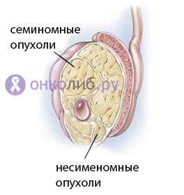 Рак яичка у мужчин: симптоми, признаки, лечение
