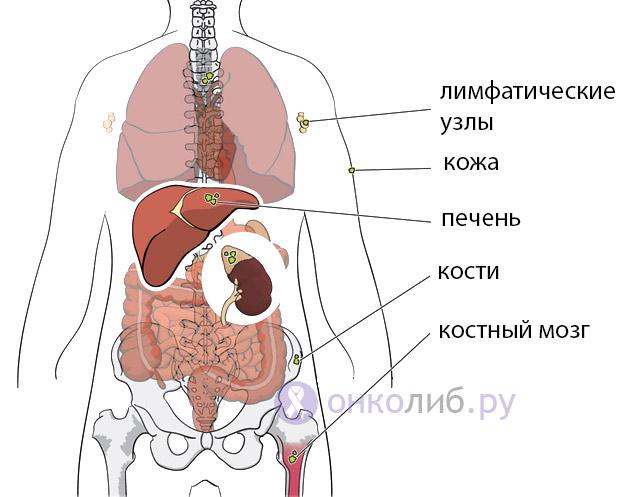 Нейробластома: стадии опухоли, симптомы, лечение