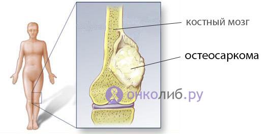 "Опухоли, ""рак"" костей: симптоми, лечение, прогноз, метастази"
