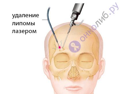 Липома: что ето, причини, лечение, удаление, операция