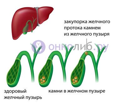 Полипи в желчном пузире: лечение, симптоми, операция