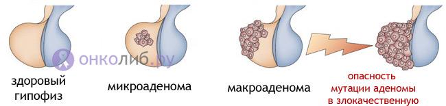 Аденома гипофиза: лечение, симптомы, прогноз
