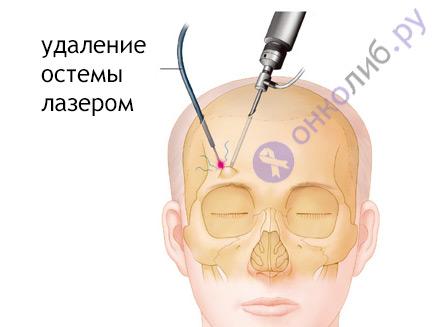 Остеома: причины, лечение - костей, лобной пазухи