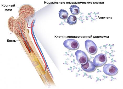 Т клеточный лейкоз прогноз