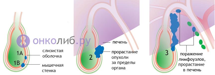 Рак желчного пузиря и протоков: симптоми, лечение, прогноз