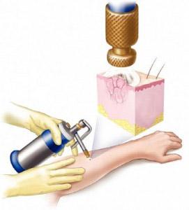 Папиллома: лечение, удаление, симптомы, причины