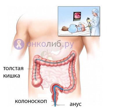 Полипы в кишечнике, прямой кишке: симптомы и лечение