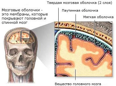 Менингиома головного мозга: лечение/удаление, прогноз
