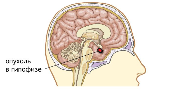 Микроаденома гипофиза: симптомы, лечение, чем опасна