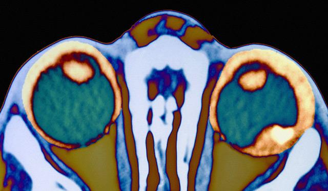 ретинобластома в правом глазу на диагностическом снимке