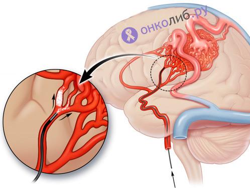 Ангиома головного мозга, кожи, гемангиома, кавернома: лечение, причины