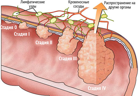 Рак сигмовидной кишки: симптомы, лечение, операция, прогноз