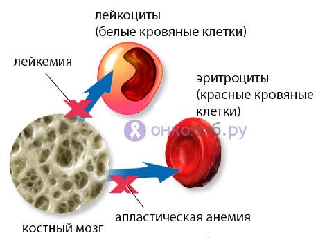 Пересадка костного мозга, трансплантация: при лейкозе и анемиях