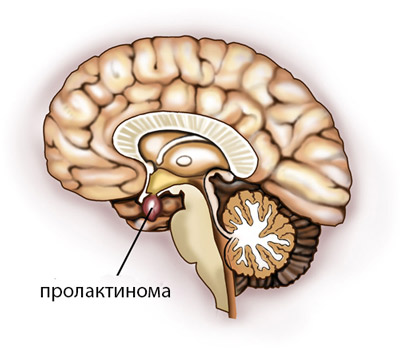 Пролактинома гипофиза: симптомы, лечение у женщин и мужчин