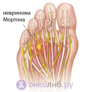 Неврома Мортона (стопы): лечение, симптомы, удаление