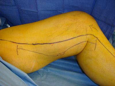 Остеосаркома, остеогенная саркома: симптомы, лечение