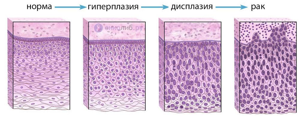 Пролиферация клеток епителия (железистого, цилиндрического)