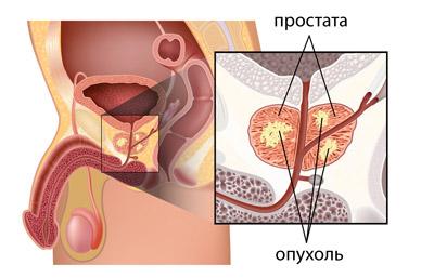 Брахитерапия рака (предстательной желези, матки)