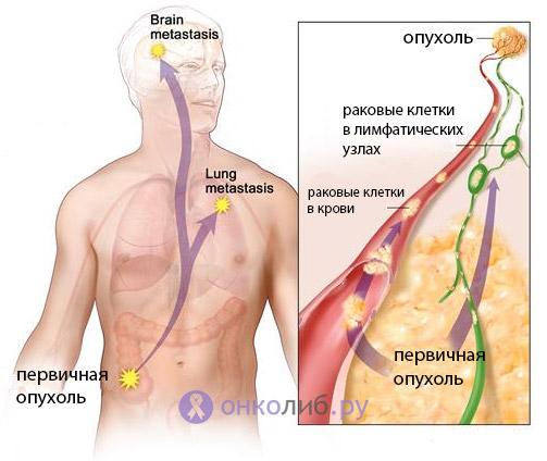 Рак лимфоузлов (метастази): симптоми, лечение, на шее и других органах