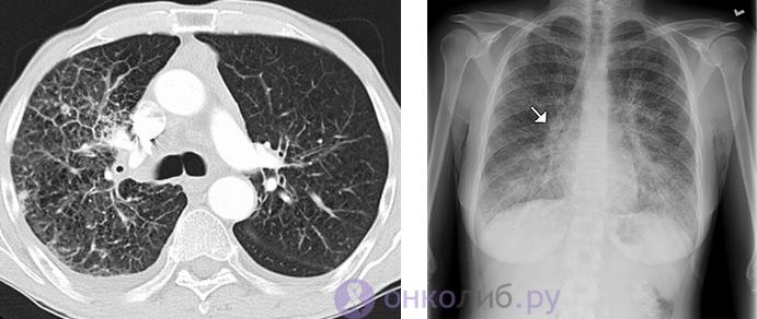 канцероматоз на КТ и рентгенограмме