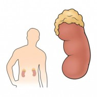 Аденома надпочечника с низким содержанием жира
