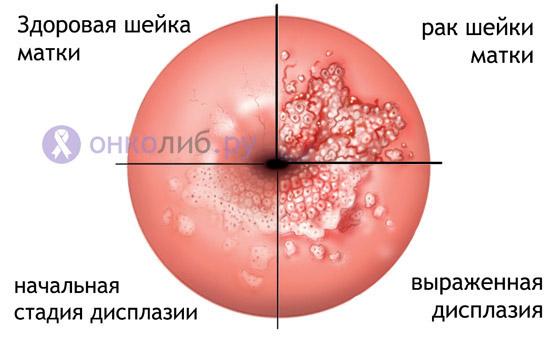 Пролиферация клеток железистого эпителия что это такое — Мой гинеколог